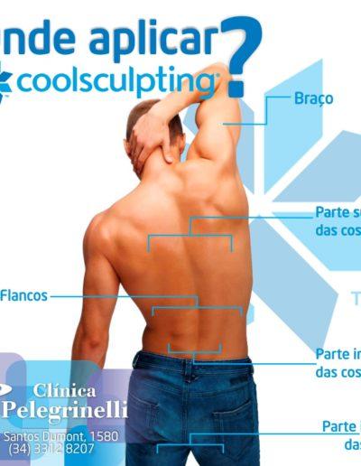 Onde aplicar o CoolSculpting 2